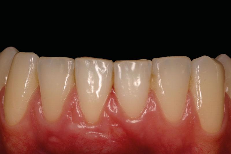 teruggetrokken-tandvlees-na-behandeling
