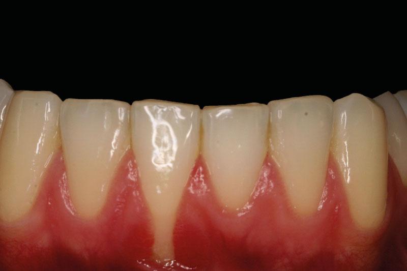 teruggetrokken-tandvlees-voor-behandeling
